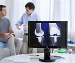 Study shows cost-effectiveness of total knee replacement for patients with knee osteoarthritis