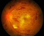 Early treatment with anti-VEGF injections slows diabetic retinopathy