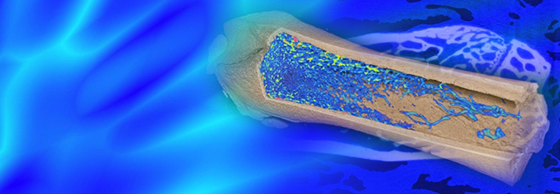 Using Micro-CT Imaging for the Phenotyping and Analysis of Bone Architecture