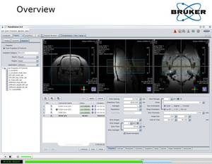 Improve Your Imaging Results with ParaVision 6
