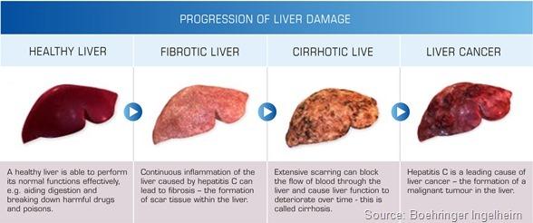 1_progression-of-liver-damage