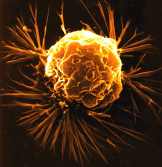 Electron micrograph of a single breast cancer cell.