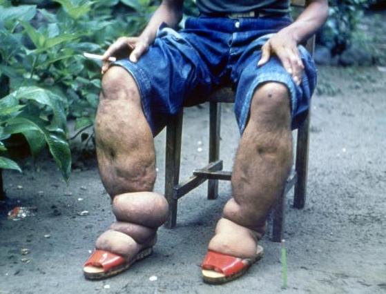 Elephantiasis of leg due to filariasis. Luzon, Philippines.