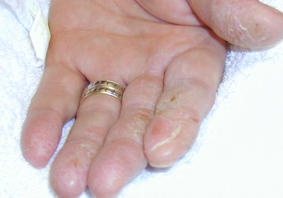 Óptico - dermatite não-dominante da mão (alergia ao acrylate do etilo)