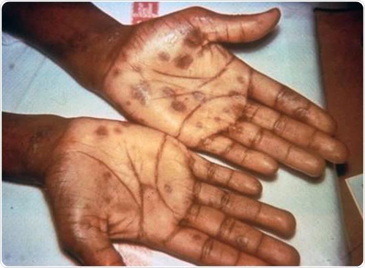 Secondary stage syphilis sores (lesions) on the palms of the hands. Referred to as
