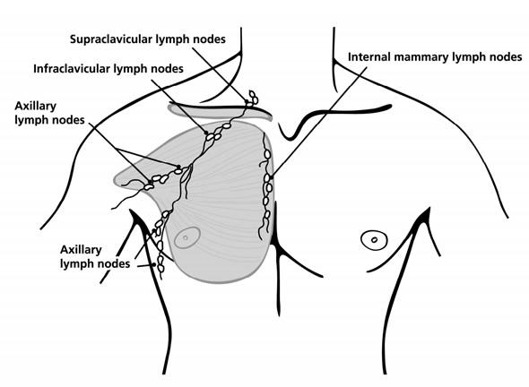 Cancer hormonal de pecho, Cancer hormonal de mama