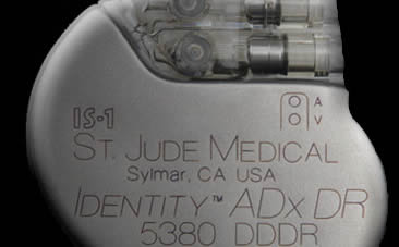 Identity ADx Pacemaker from St. Jude Medical