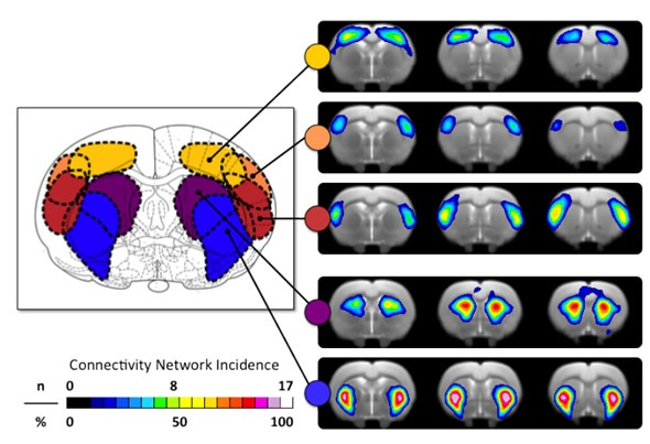 Topology of Functional Connectivity Networks identified via ICA.