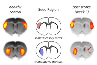 Loss of Functional Connectivity after Stroke.