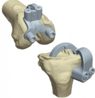 EMPREINTE Knee Prosthesis from Euros