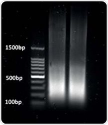 Figure 1. Chromatin was sheared using a Bioruptor for 30-second bursts with 30-second intervals on ice at a power setting of 3 for 15min so that desired fragment lengths between 1 and 500bp were obtained.