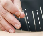 Acupuncture and Western-style medicine