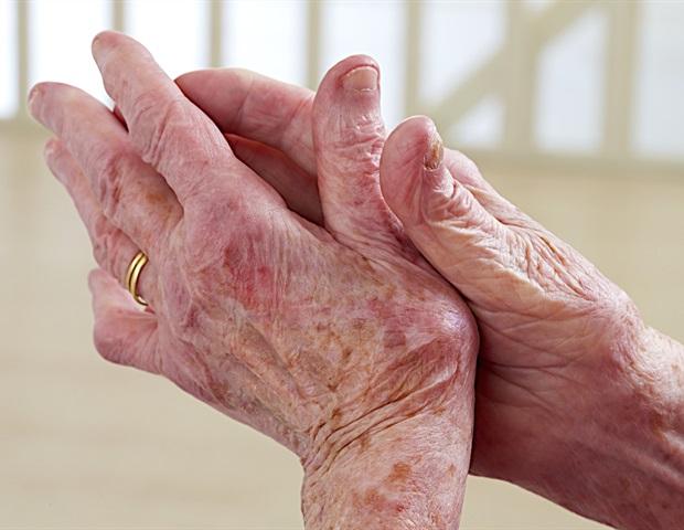 arthritis psoriatica sintomas együttes kezelés állatorvosi gyógyszerek