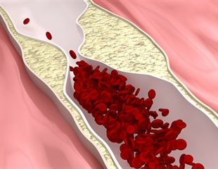 Scientists investigate mechanisms by which hypertension leads to atherosclerosis