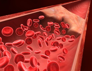 Post-mortem study of dead COVID-19 patients finds lung damage and blood clots