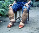 Study shows how common drug paralyzes the parasites that cause elephantiasis