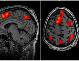 Neuroimaging technology used to study how brain stimulation works for treatment of depression
