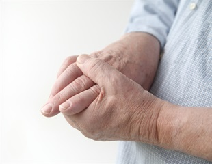Fewer patients take effective gout drug after steep price increase