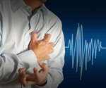 Long-term stress is a risk factor for heart attacks, study suggests