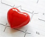 Healthy individuals may be at risk for heart disease