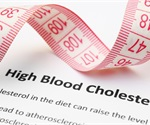Serum taurine may protect against CHD in women with high cholesterol