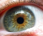 Parkinson's disease drug may improve vision in patients with age-related macular degeneration