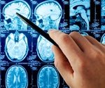 Study reveals new biomarker for amyotrophic lateral sclerosis