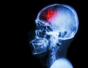 Patients with neurological symptoms associated with COVID-19 are six times more likely to die
