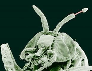 Researchers examine whether community administration of ivermectin influences malaria transmission
