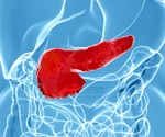 FDA approves Afinitor for treatment of progressive neuroendocrine tumors in the pancreas