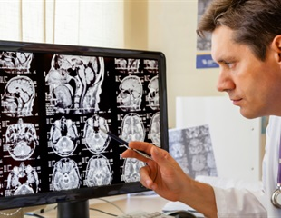 PRRT technology may offer new treatment approaches for neuroendocrine tumors