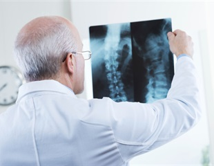 After accident, patient crashes into $700,000 bill for spine surgery