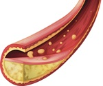 'Reassuring' findings on microvascular risk in diabetic statin users