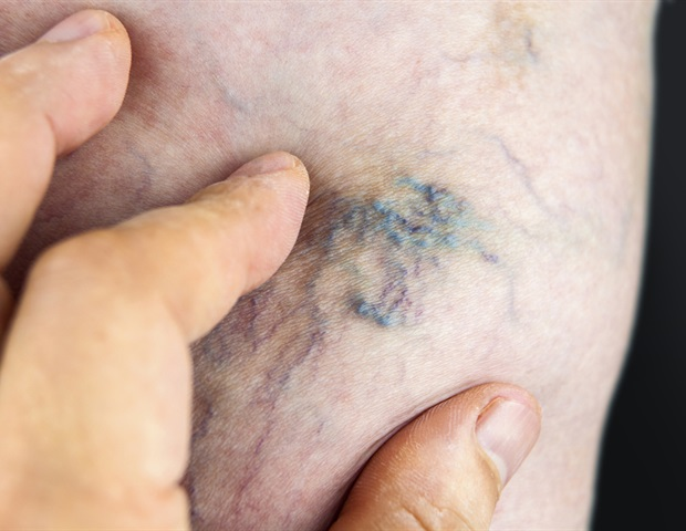 sare pe vene varicoase dacă vene varicoase pot fi defecte