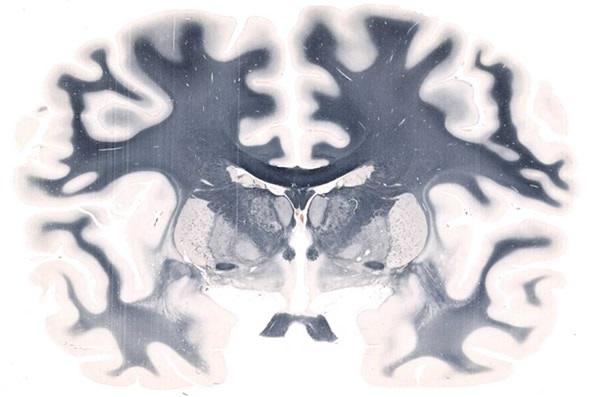 Whole Mount Brain - 5