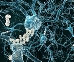 Understanding Alzheimer's Disease Through Genomics and Proteomics