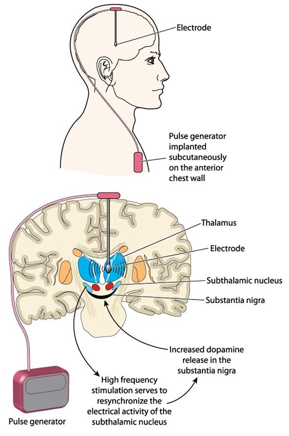 Stimulation profonde de cerveau utilisant un générateur de pouls implanté