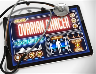 Researchers develop ovarian tumor microenvironment-chip to test novel ways to treat the disease