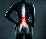 Osteoporosis drug increases bone mineral density in the hip and lumbar spine