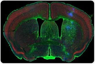 Rodent brain (top) depicting simultaneous acquisition of fluorophores Cy2, Cy3 and Cy5; Brain image (bottom) magnified to 0.5 μm