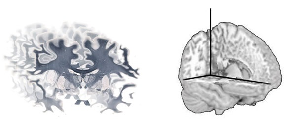 A series of whole brain images can be reconstructed using software to produce a 3D volume.