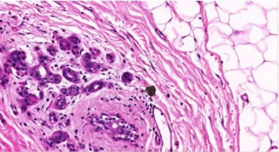 20X magnification of breast tissue specimen with 0.5μm resolution