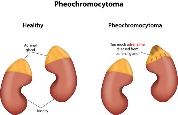 Pheochromocytoma - Image Copyright: joshya / Shutterstock