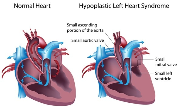 Hypoplastic left heart syndrome - Image Copyright: Alila Medical Media / Shutterstock