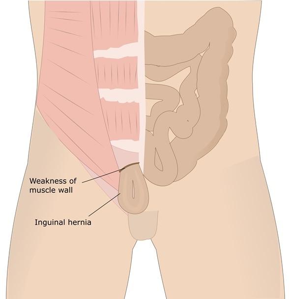inguinal hernia - Image Copyright: ellepigrafica / Shutterstock