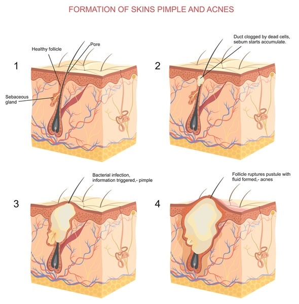 Formation of skins pimple and acnes - Image Copyright: logika600 / Shutterstock