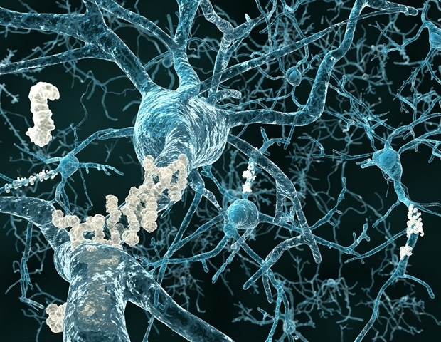 Study examines a pathway responsible for the formation of tau tangles in the brain