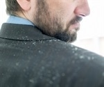 A third of people avoid social situations due to uncontrolled dandruff, reveals anonymous survey