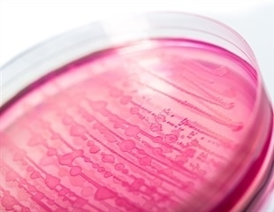 Study: E. coli Nissle may also protect human cells against other pathogenic strains