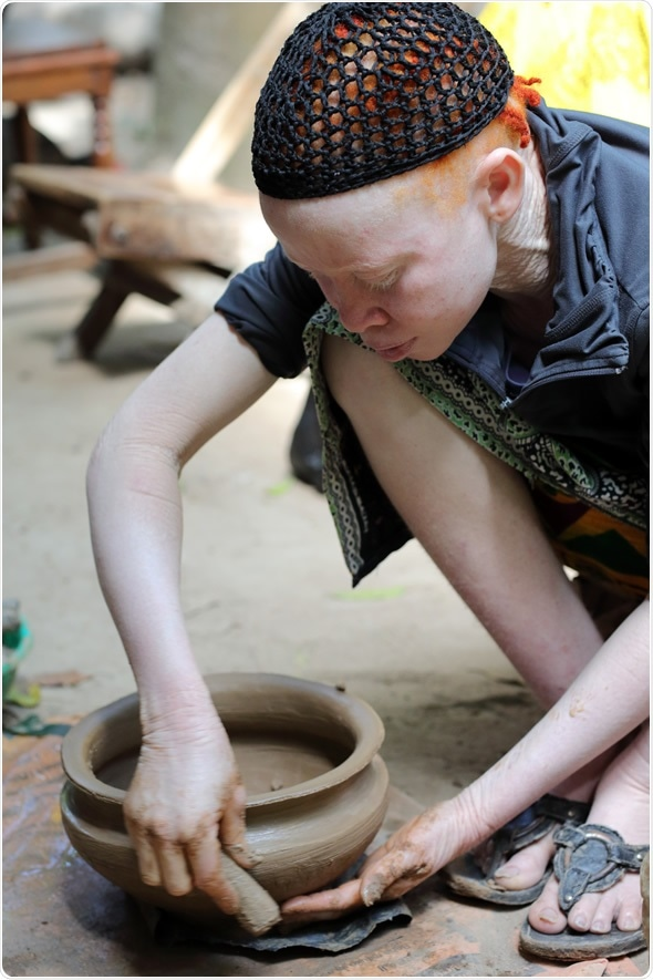 UKEREWE - TANZANIA - JULY 2, 2015: Unidentified albino mother and son on July 2, 2015 in Ukerewe, Tanzania.